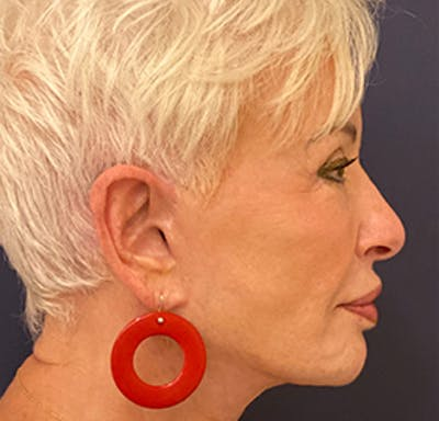 Facelift Gallery - Patient 53230537 - Image 4