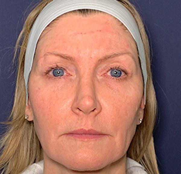 Facelift Gallery - Patient 53237660 - Image 1