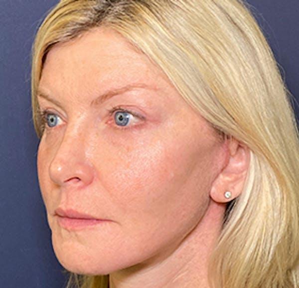 Facelift Gallery - Patient 53237660 - Image 4