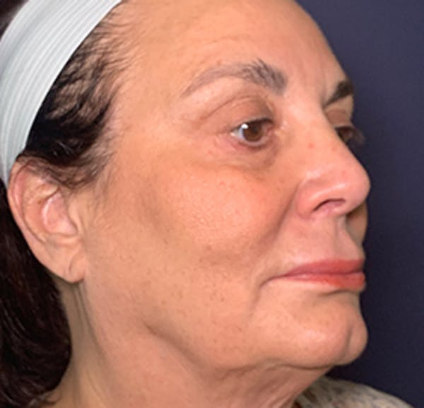 Facelift Gallery - Patient 53237903 - Image 3