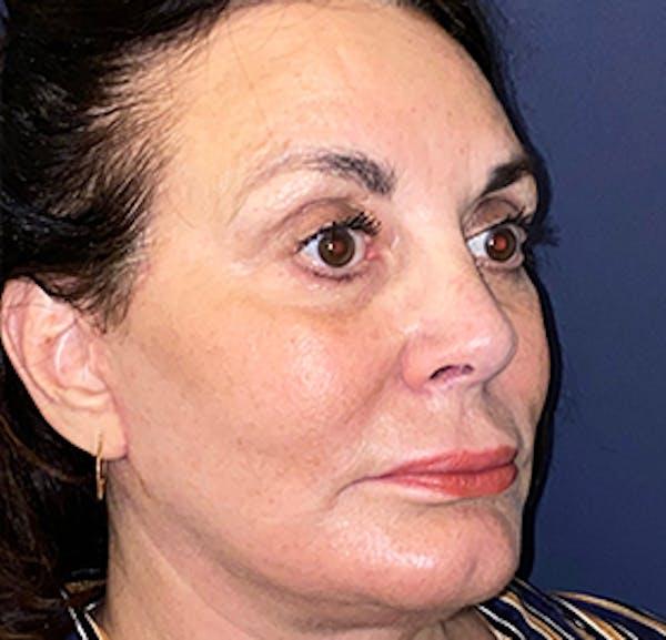 Facelift Gallery - Patient 53237903 - Image 4