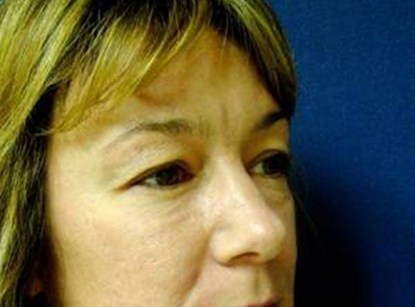 Blepharoplasty (Eyelid Surgery) Gallery - Patient 4447926 - Image 3