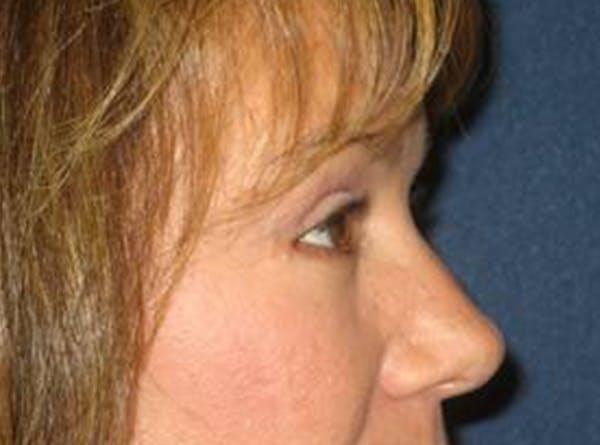 Blepharoplasty (Eyelid Surgery) Gallery - Patient 4447926 - Image 4
