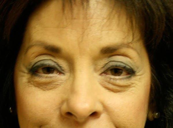 Blepharoplasty (Eyelid Surgery) Gallery - Patient 4447804 - Image 1