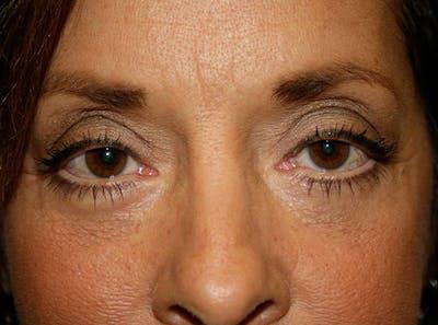 Blepharoplasty (Eyelid Surgery) Gallery - Patient 4447804 - Image 2