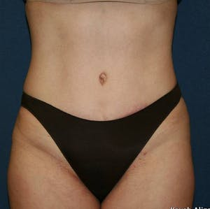Before and after of a NYC tummy tuck