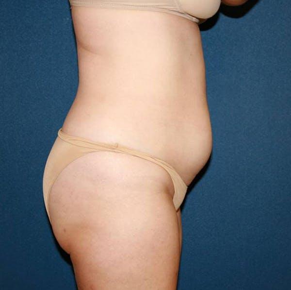 Tummy Tuck (Abdominoplasty) Gallery - Patient 4448621 - Image 3