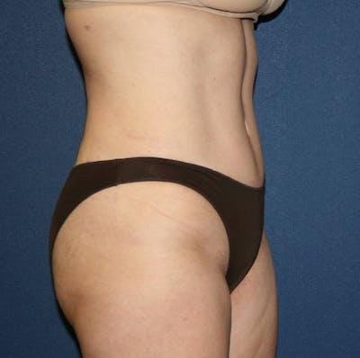 Tummy Tuck (Abdominoplasty) Gallery - Patient 4448621 - Image 4