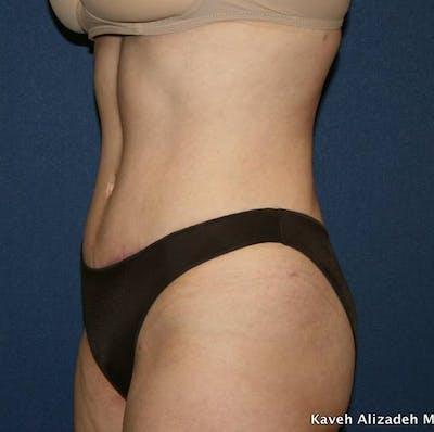 Tummy Tuck (Abdominoplasty) Gallery - Patient 4448621 - Image 6