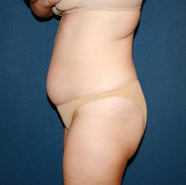 Tummy Tuck (Abdominoplasty) Gallery - Patient 4448621 - Image 5