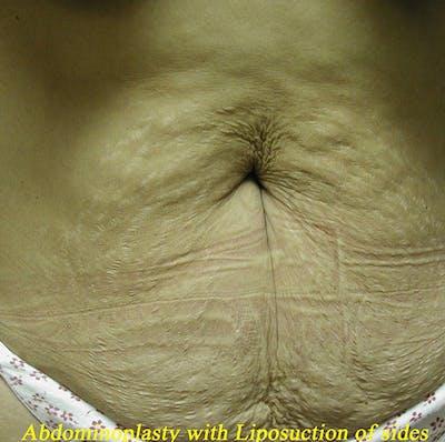 Tummy Tuck (Abdominoplasty) Gallery - Patient 4448649 - Image 1