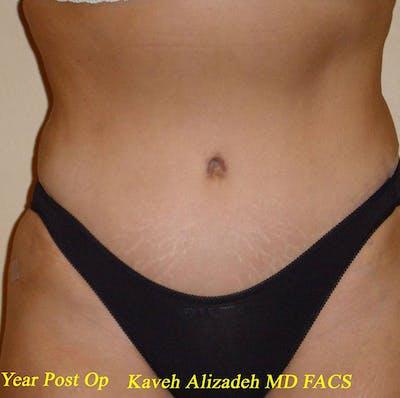 Tummy Tuck (Abdominoplasty) Gallery - Patient 4448649 - Image 2