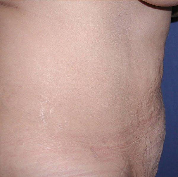 Tummy Tuck (Abdominoplasty) Gallery - Patient 4448649 - Image 3