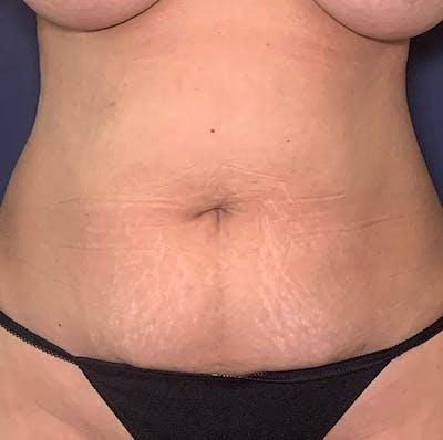 Tummy Tuck (Abdominoplasty) Gallery - Patient 49275784 - Image 1