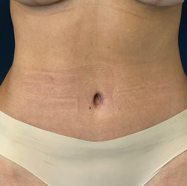 Tummy Tuck (Abdominoplasty) Gallery - Patient 49275784 - Image 2