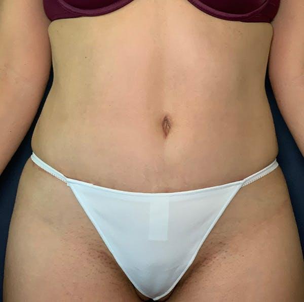 Tummy Tuck (Abdominoplasty) Gallery - Patient 53868591 - Image 2