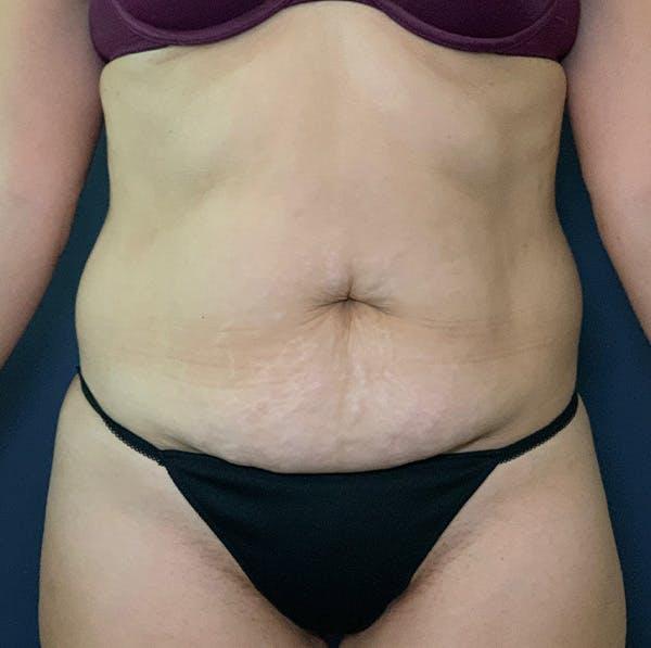 Tummy Tuck (Abdominoplasty) Gallery - Patient 53868591 - Image 1
