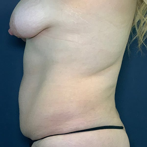 Breast Lift with Fat Grafting Gallery - Patient 54031633 - Image 1
