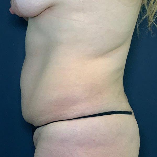 Tummy Tuck (Abdominoplasty) Gallery - Patient 54031601 - Image 3