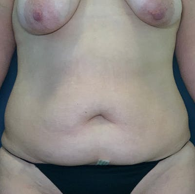 Mommy Makeover Gallery - Patient 54031624 - Image 1