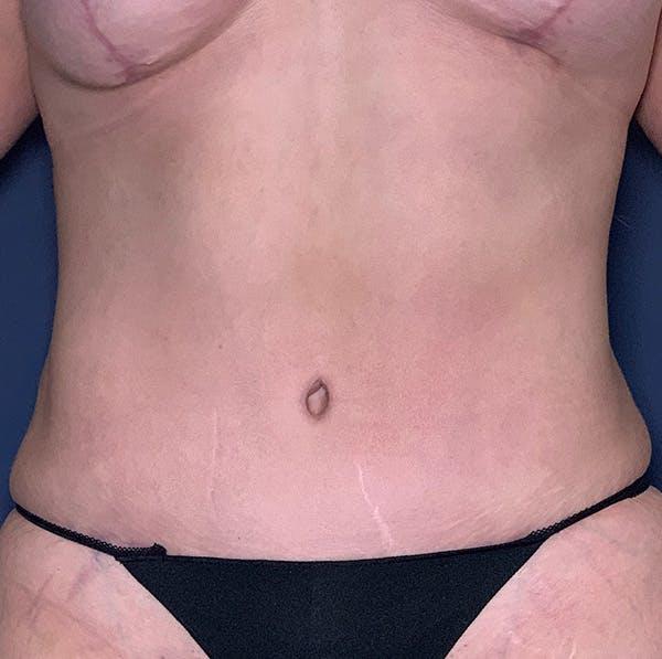 Tummy Tuck (Abdominoplasty) Gallery - Patient 54031601 - Image 2