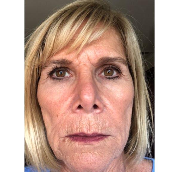 Facelift Gallery - Patient 53237595 - Image 1