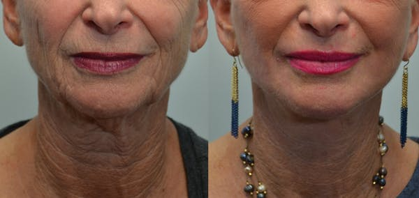 Facelift Gallery - Patient 4588106 - Image 1
