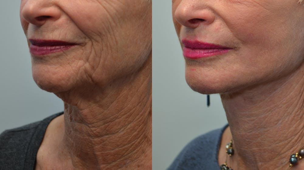 Facelift Gallery - Patient 4588106 - Image 2