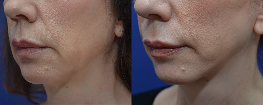 Facelift Gallery - Patient 4588114 - Image 2