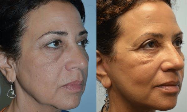 Facelift Gallery - Patient 4588115 - Image 1