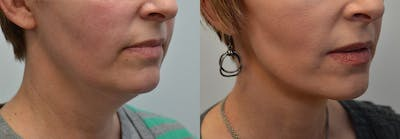 Facelift Gallery - Patient 4588117 - Image 7