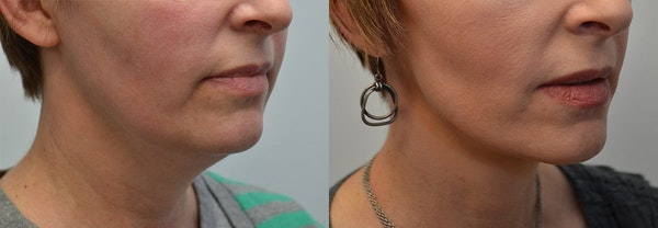 Facelift Gallery - Patient 4588117 - Image 1