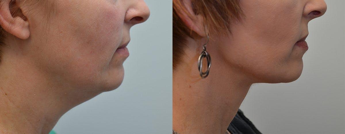 Facelift Gallery - Patient 4588117 - Image 2