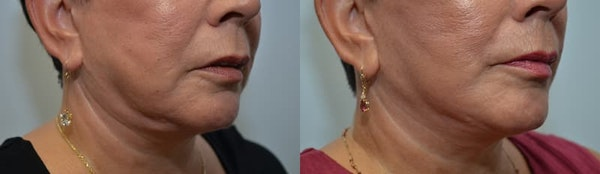 Facelift Gallery - Patient 4588118 - Image 1
