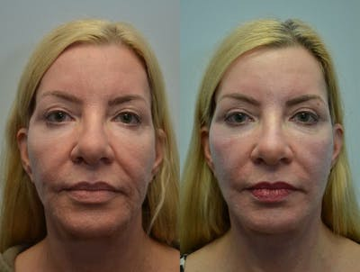 Facelift Gallery - Patient 4588121 - Image 9