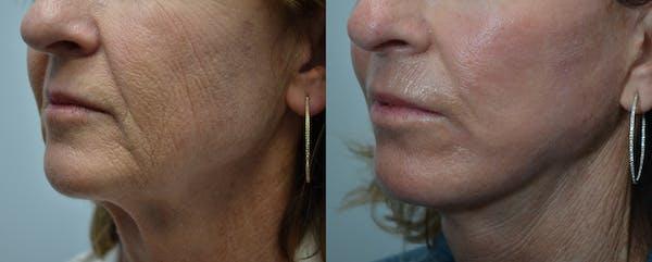 Facelift Gallery - Patient 4588126 - Image 1