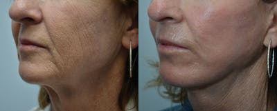 Facelift Gallery - Patient 4588126 - Image 1