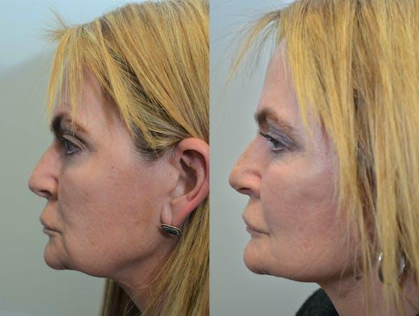 Facelift Gallery - Patient 4588151 - Image 1