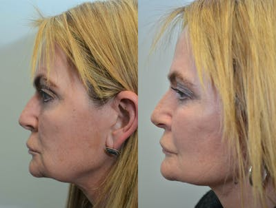 Facelift Gallery - Patient 4588151 - Image 1