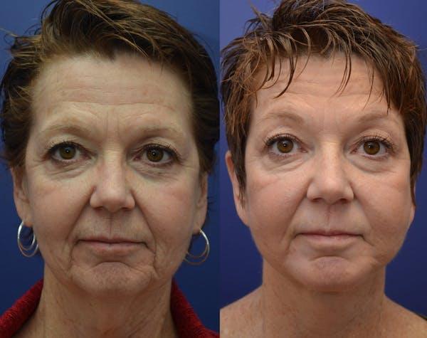 Facelift Gallery - Patient 4588152 - Image 1