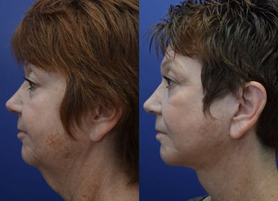 Facelift Gallery - Patient 4588152 - Image 2