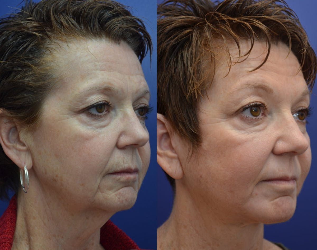Facelift Gallery - Patient 4588152 - Image 3