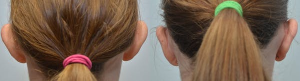 Ear Reshaping (Otoplasty) Gallery - Patient 4588249 - Image 1