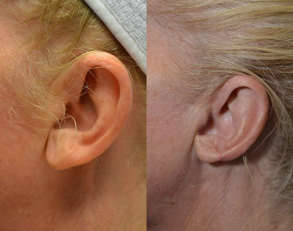 Ear Reshaping (Otoplasty) Gallery - Patient 4588250 - Image 1