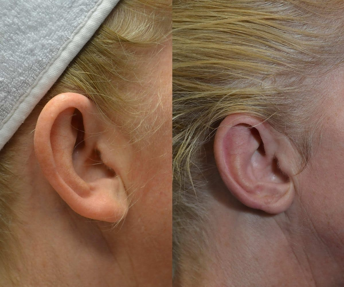 Ear Reshaping (Otoplasty) Gallery - Patient 4588250 - Image 2