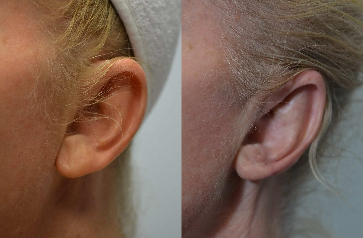 Ear Reshaping (Otoplasty) Gallery - Patient 4588250 - Image 3