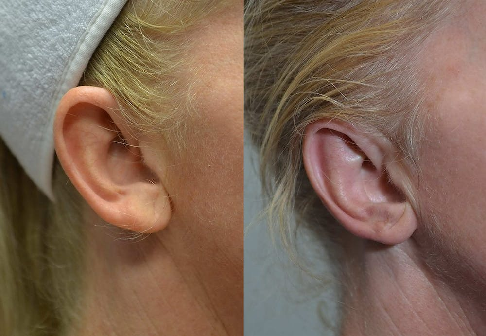 Ear Reshaping (Otoplasty) Gallery - Patient 4588250 - Image 4