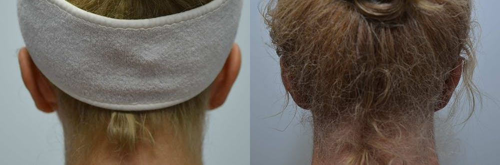 Ear Reshaping (Otoplasty) Gallery - Patient 4588250 - Image 5