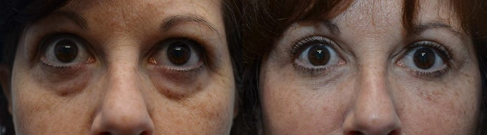 Facial Revolumizing (Fat Transfer) Gallery - Patient 4588316 - Image 1