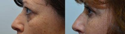 Facial Revolumizing (Fat Transfer) Gallery - Patient 4588316 - Image 2